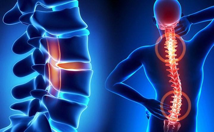 Gặp vấn đề về cột sống cũng là nguyên nhân gây lên thiếu mãu não