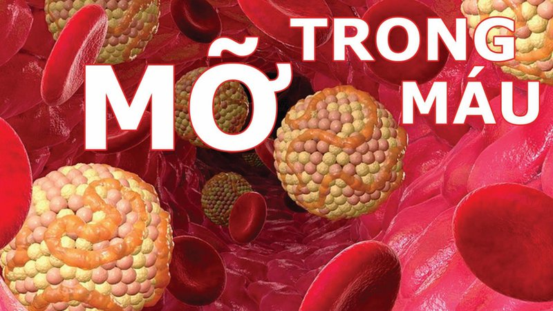 Bệnh mỡ máu và tim mạch có liên quan gì đến nhau