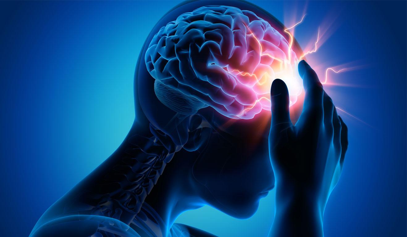 Thiếu máu não - Triệu chứng và cách điều trị